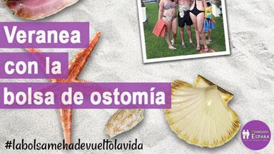 ¡Veranea  con  la  bolsa  de  ostomía!  #ostomíaverano